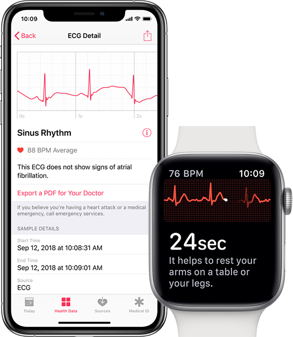 Función de ECG en el Apple Watch Series 4